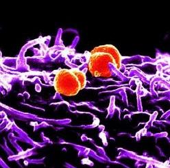Meningite: 50enne di Canegrate in Rianimazione