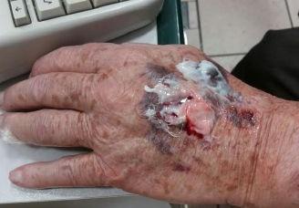 Rho: Gli rovinano la mano per rubargli il Rolex