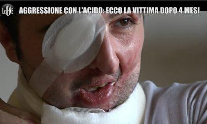Raccolta fondi per aiutare Giuseppe Morgante, sfregiato con l'acido dalla ex
