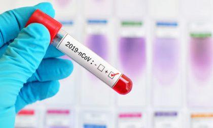 Un caso di Coronavirus anche a Dairago