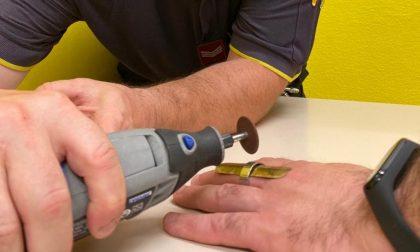 Pompieri al Pronto soccorso per tagliare l'anello su un dito fratturato